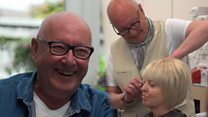 Celebrity hairdresser helps hair loss patients