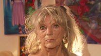 'I was denied a facial because of HIV'