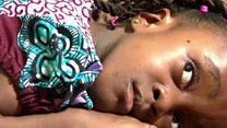 Efia Ayeyi w'imyaka 8, arwaye indwara ituma aguma avunagurika