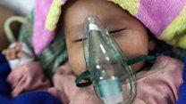 ન્યુમોનિયાથી દર 39 સેકંડે એક બાળકનું મૃત્યુ થાય છે