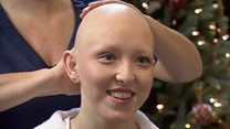 'Losing my hair is something I wouldn't change'