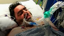 Flu victim recovering from three-month coma