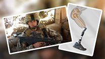 Ex-soldier amputee: 'I can feel everything now'