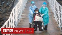 港大医学专家解读中国改变新冠状病毒肺炎确诊标准