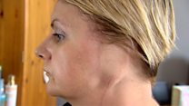 'I lost an ear to my tanning addiction'
