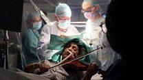 Пациентка сыграла на скрипке во время операции на мозге