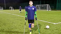 'I lost part of my leg and discovered football'