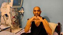 'I'm waiting for my third kidney transplant'