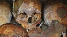 Remarkable skulls