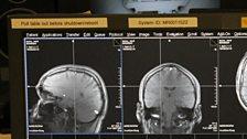 Andrew McGregor's brain