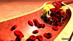 Cholesterol treatment, heatwave in Britain 科学家测试降胆固醇的新疗法、英国夏日酷暑