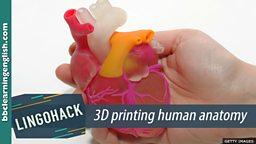 3D printing human anatomy
