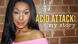Acid Attack: My Story - Episode 02-04-2019