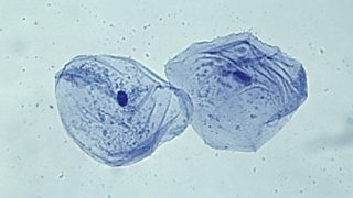 Microscope view of cheek cells.