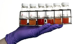 Set of culture vials containing broth in which bacteria have grown