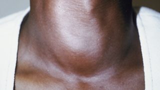 Thyroid goitre on the neck of a woman