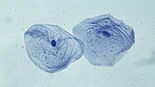 Epithelial (cheek) cells