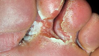 Present athlete's foot between toes