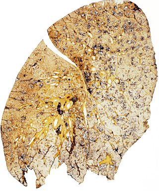 Smoker's lungs have several dark patches