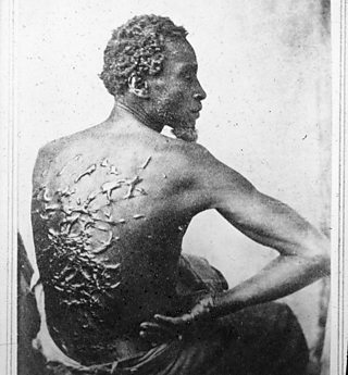 A slave, known as Gordon, displays the many scars on his back from being whipped