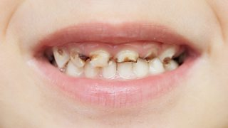A child with tooth decay