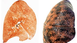 Sections of a healthy lung and a smoker's lung, showing tar deposits.