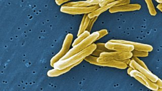 A picture of tuberculosis bacteria. The bacteria are tube shaped and do not have tails.