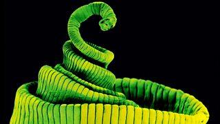 A tapeworm