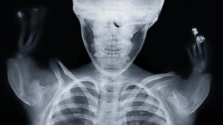 An X-ray of a child affected by thalidomide