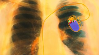 Coloured X-ray of the chest of a patient, showing a fitted heart pacemaker.
