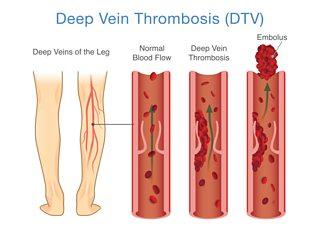 Peripheral Vascular Disease - Pathology of cardiovascular ...