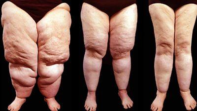 Lipoedema legs