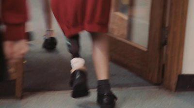 Euan with his prosthetic leg