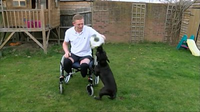Man who lost both legs to sepsis