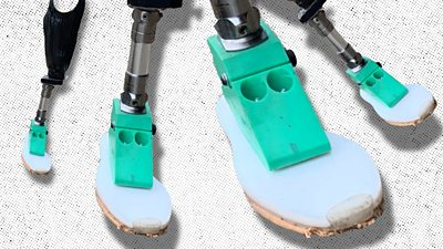 Four prosthetic limbs