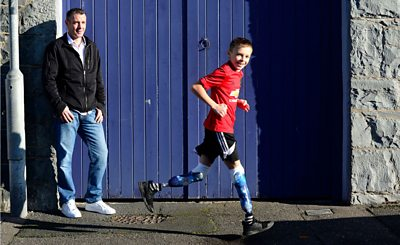 A boy who was not allowed to use a trampoline because he has prosthetic legs has received a £2,500 settlement in a disability discrimination case.
