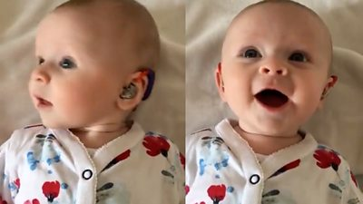 A baby with a hearing aid smiling