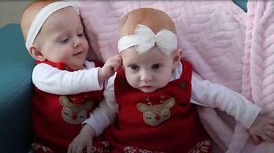 Sisters April and Evie were born with a rare defect which affects one in 4000 newborns.