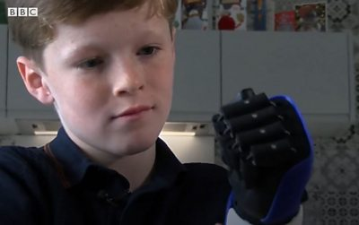 Jacob Pickering with his bionic arm