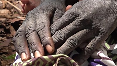 Climate change has brought parts of Zambia to the brink of famine