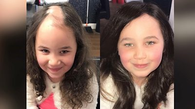 A hair technician from Leeds provides free hair systems to cover the bald patches of girls with alopecia living in the city.