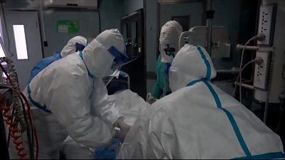 What has been the reaction from authorities to the person who contracted the virus in California?