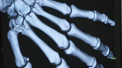 A medical scan of a hand