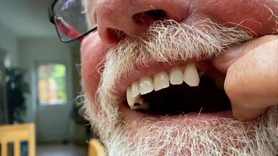 Debroy Parrington shows gap in his teeth.