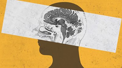 Human outline highlighting brain