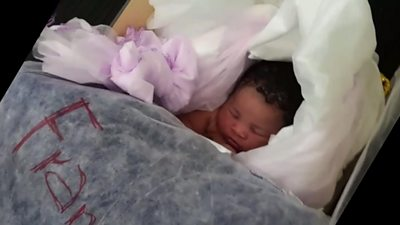Baby Miracle