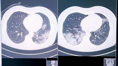 A lung scan