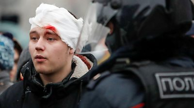 Protester in Moscow with bloodied bandage