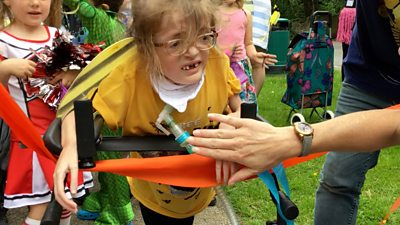 """Bea's mum calls it a """"massive achievement,"""" after two heart operations due to a rare disorder."""