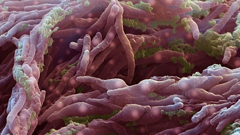 Possible cure for multidrug-resistant TB
